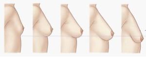 胸オペの適応