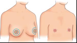 胸オペ脂肪吸引後