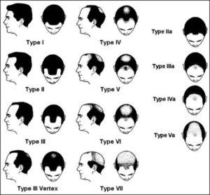 FTM脱毛症