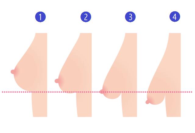 胸オペの下垂度