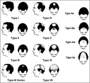 FTMの薄毛・禿げる